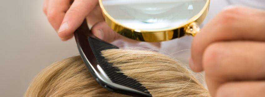 Psoriasis y alopecia
