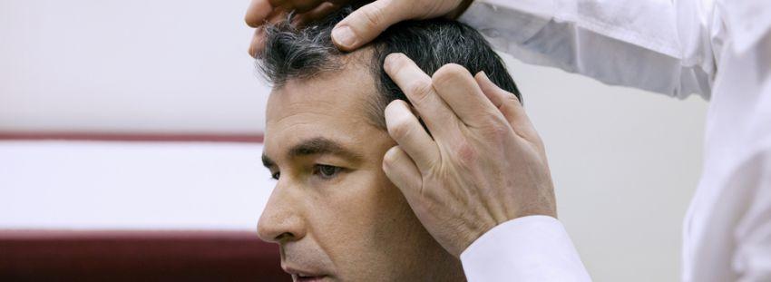 diagnóstico precoz alopecia