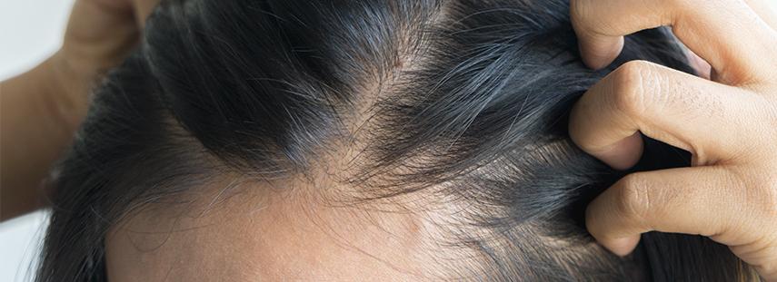 imagen de caída de cabello
