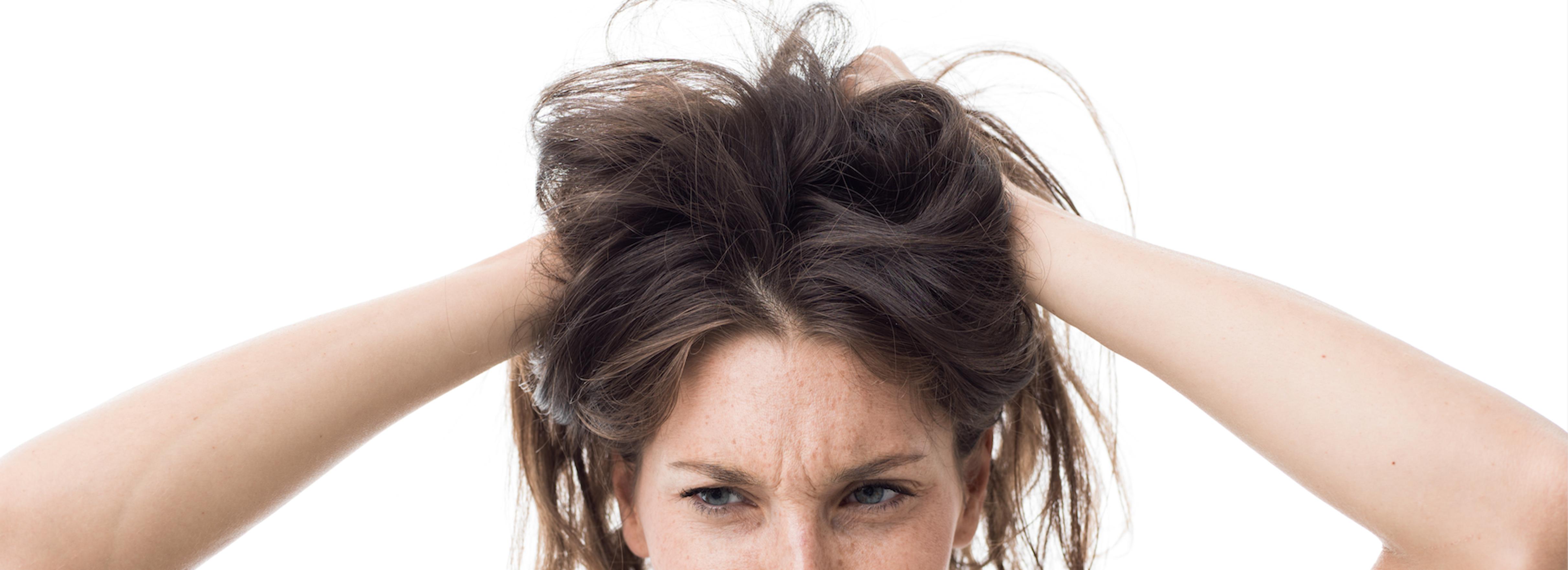 alopecia estrés