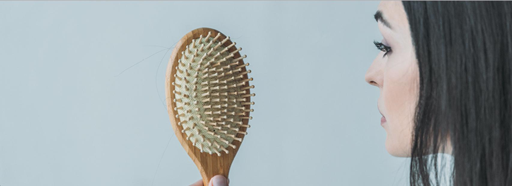 alopecia, caída del cabello
